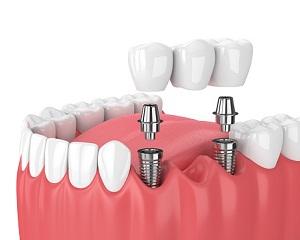 Dlaczego implanty to dobra metoda uzupełnienia braków w uzębieniu?