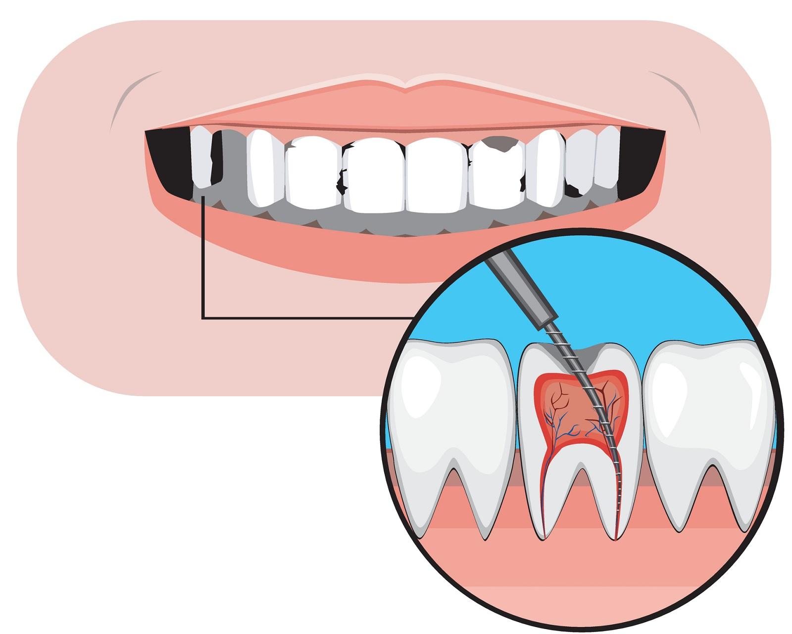 Kiedy wdrażane jest leczenie endodontyczne?