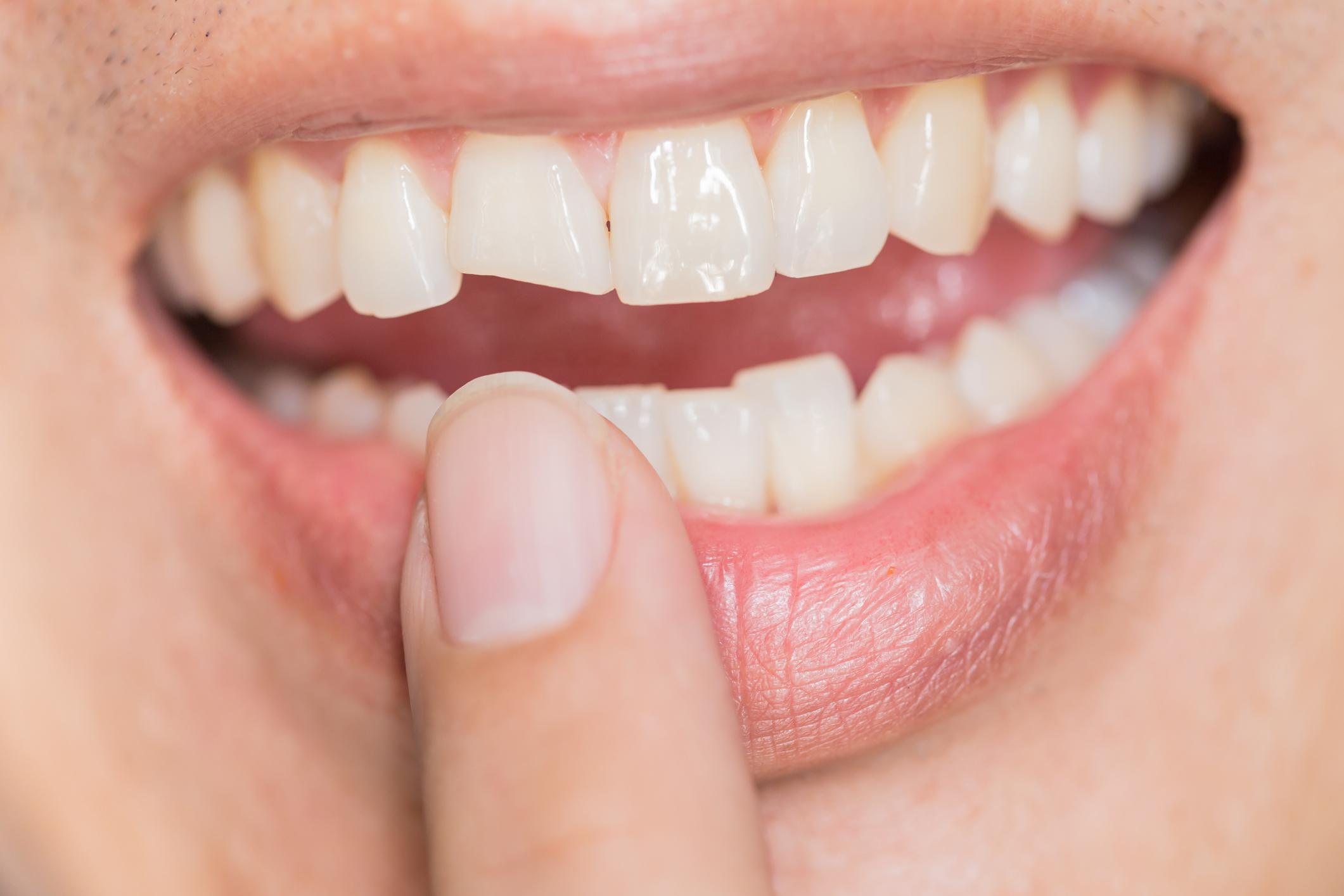 Złamany ząb. Jak poprawić jego wygląd?